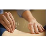 acupuntura para dor nas costas preço popular Belenzinho