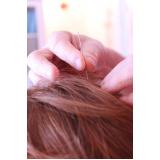 acupuntura para enxaqueca Invernada