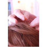acupuntura para estresse particular Itaquera