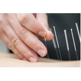 acupuntura para estresse Jardins