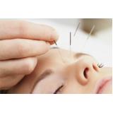 clínica de acupuntura para enxaqueca Santo Amaro